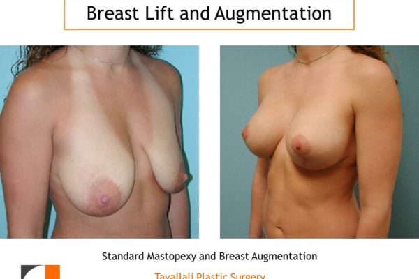 Breast lift mastopexy and augmentation of breast before after