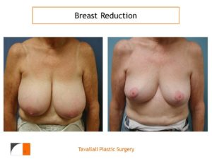 Breast reduction surgery result vertical scar