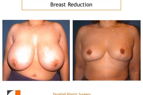 Vertical scar for breast reduction surgery