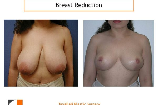 Breast reduction mammoplasty vertical scar s faded