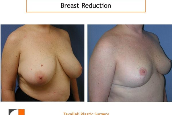 Breast reduction surgery result with faded vertical short scar