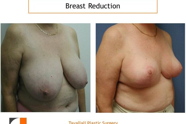 Breast reduction vertical technique before after