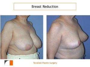 Oblique view breast reduction surgery