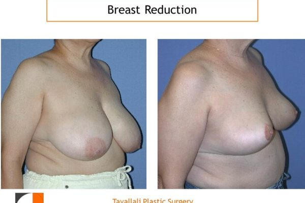 Oblique view breast reduction surgery