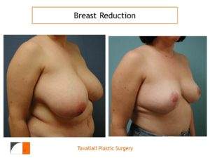 Breast reduction mammoplasty before and after