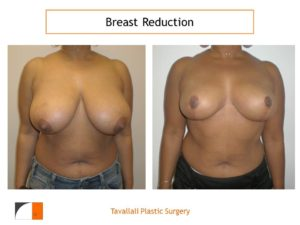 Breast reduction mammoplasty surgery before after