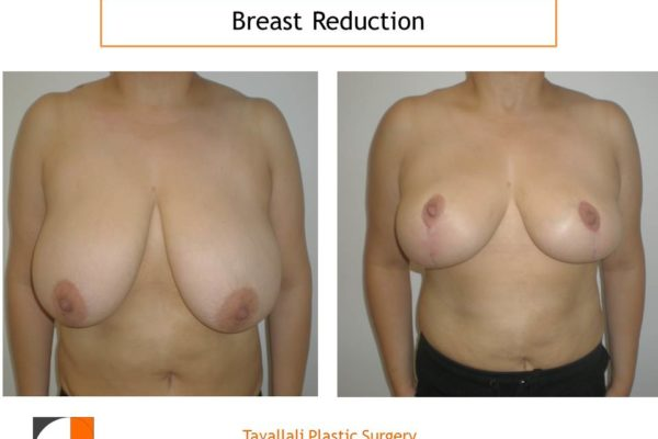 Breast reduction result with vertical mammoplasty
