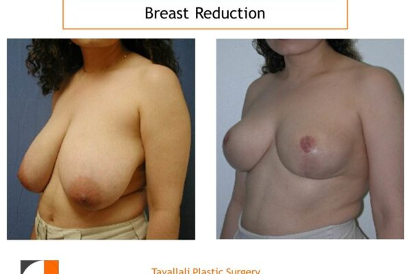 Breast reduction with short vertical scar before after photo Plastic Surgery No VA