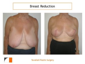 Breast reduction in elderly woman result