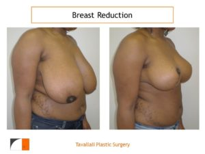 Breast reduction mammoplasty young woman