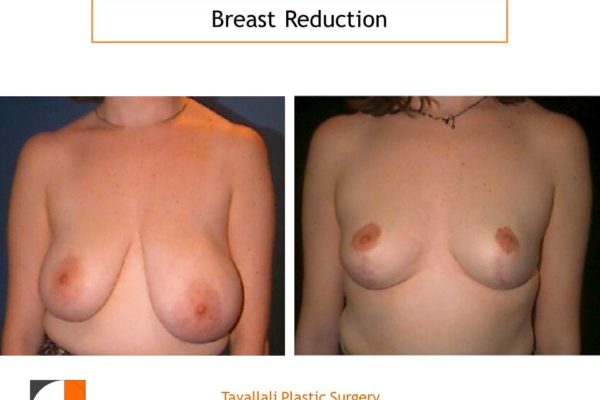 Breast reduction mammoplasty two different breast sizes