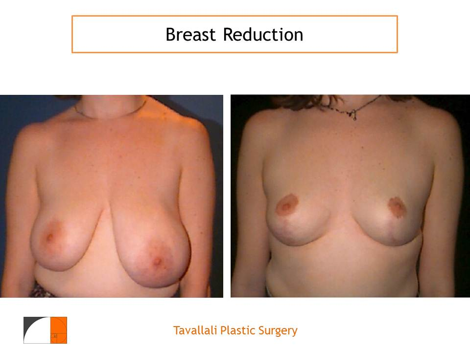 Will Insurance Pay for My Breast Reduction?