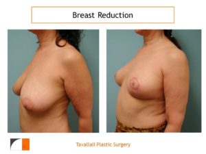 Breast reduction surgery early result