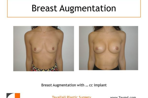 Breast augmentation with saline implants about 325 cc