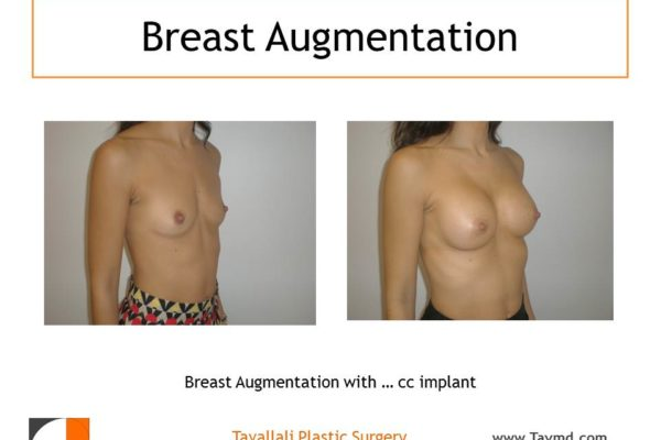 Breast augmentation with saline implants 325 cc