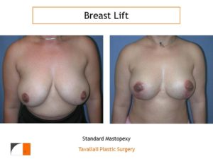 Breast lift with vertical mastopexy technique