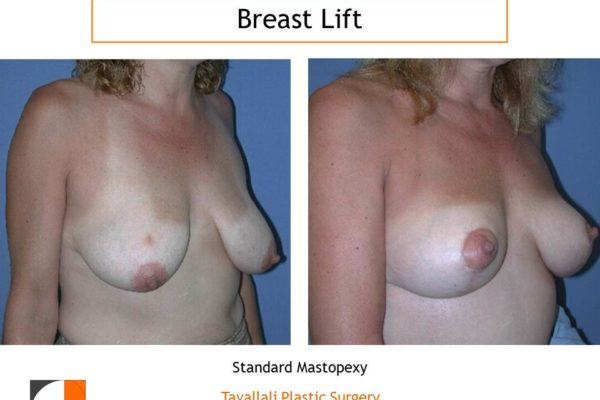 Breast lift oblique view of result