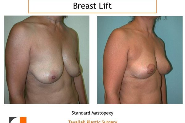 Breast lift short scar by Dr Tavallali