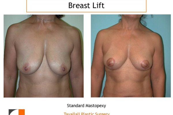 Breast lift with short scar Dr. Tavallali
