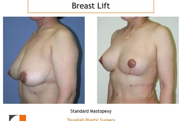 Breast lift at time of mommy surgery