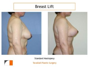 Profile view breast lift with abdominoplasty