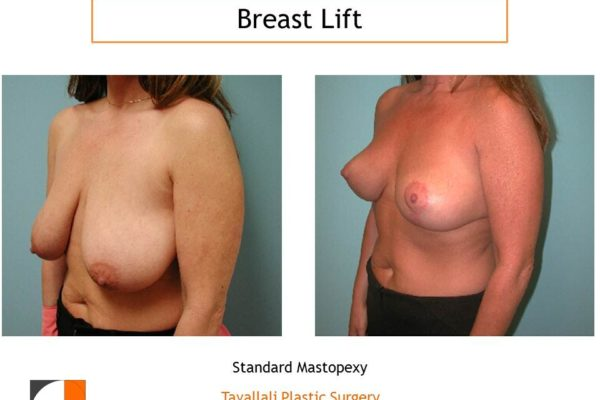 Breast lift short scar before after