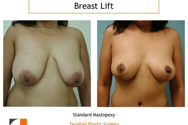 Breast lift before after and areola reduction