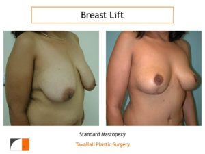 Breast lift with vertical scar in Northern VA