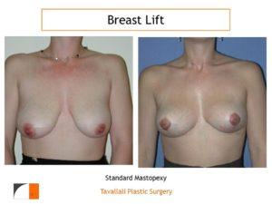 Breast lift surgery Lejour technique