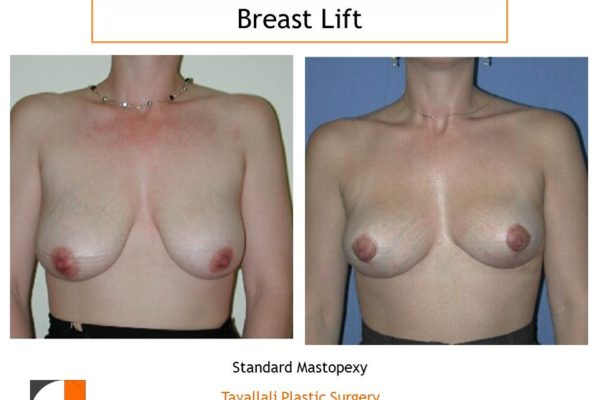 Breast lift surgery Lejour technique