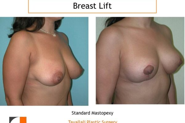 Breast lift mastopexy before & after result
