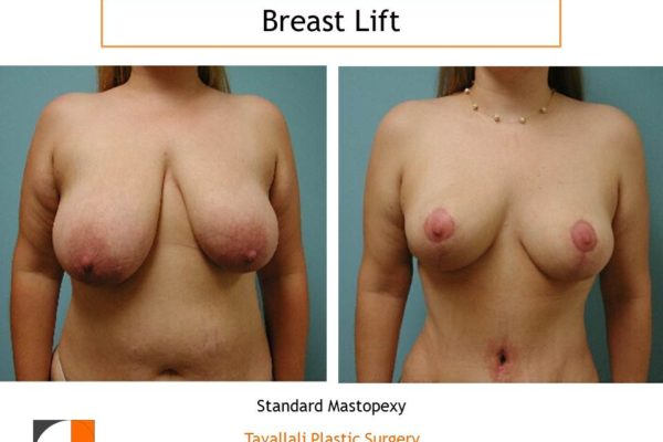 Breast lift surgery and breast reduction