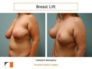 Standard mastopexy breast lift surgery