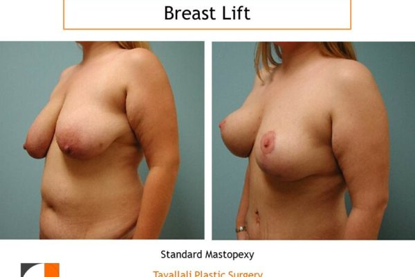 Standard mastopexy breast lift surgery