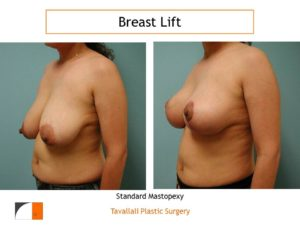 Breast lift surgery mastopexy before after