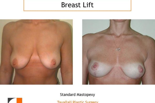 Breast lift early result with short scar