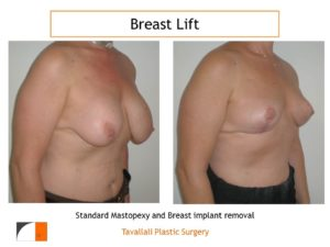 Breast lift with vertical technique and implant removal