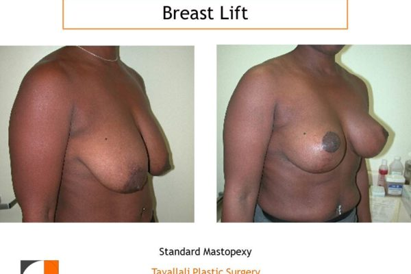Breast lift vertical scar method before after