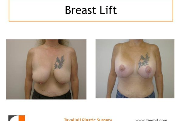 Breast lift internal bra surgery short scar technique
