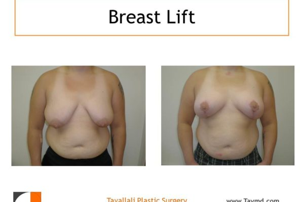 Breast lift surgery with vertical scar only