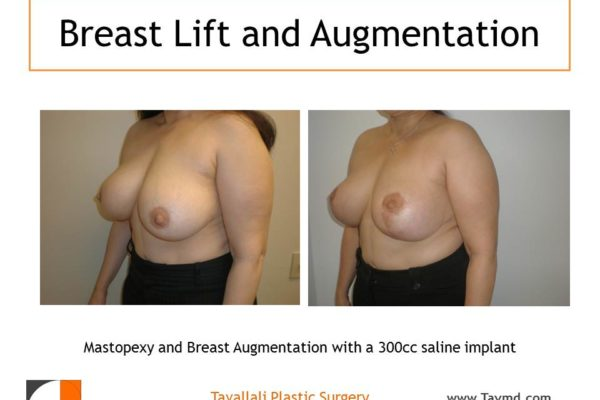 Breast lift surgery with vertical scar before after