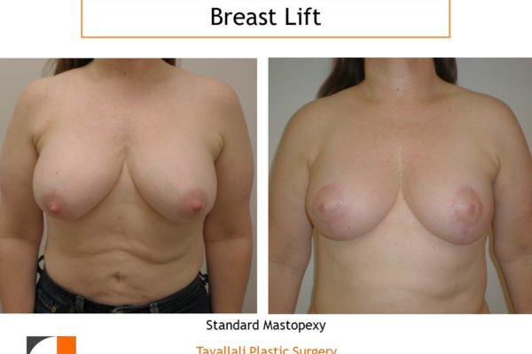 Standard breast lift with short scar