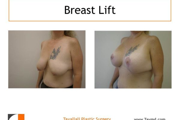 Oblique view breast lift surgery small scar