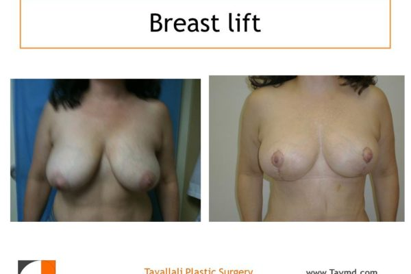 Breast lift surgery before after short vertical scar