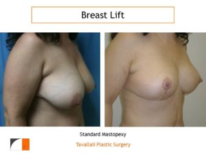 Lollipop scar breast lift