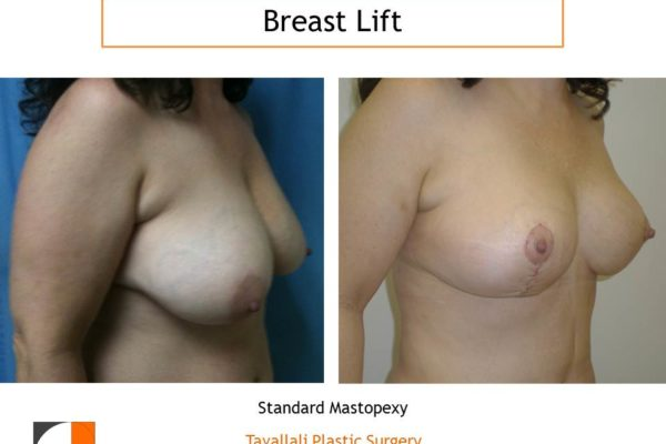 Lollipop scar breast lift