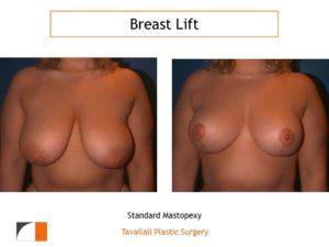 Breast lift with lollipop scar va