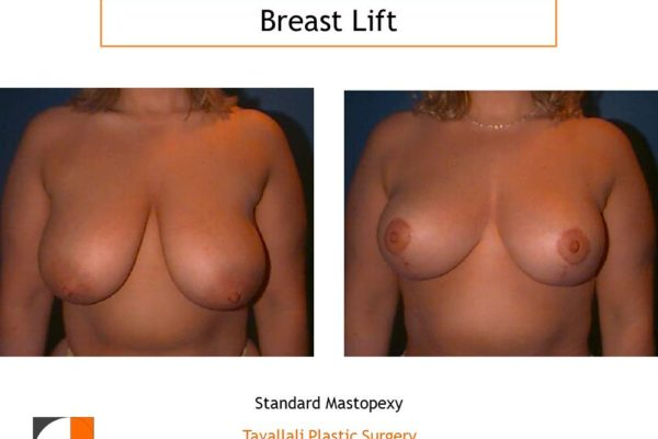 Breast lift with lollipop scar va