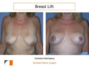 Breast lift scar barely visible