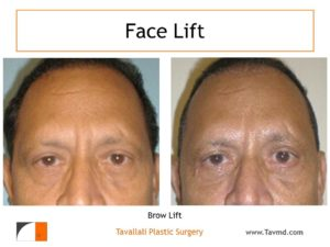male with Brow lift Forehead lift before after